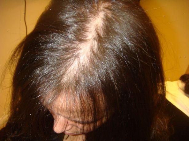 kvinnligt håravfall behandling
