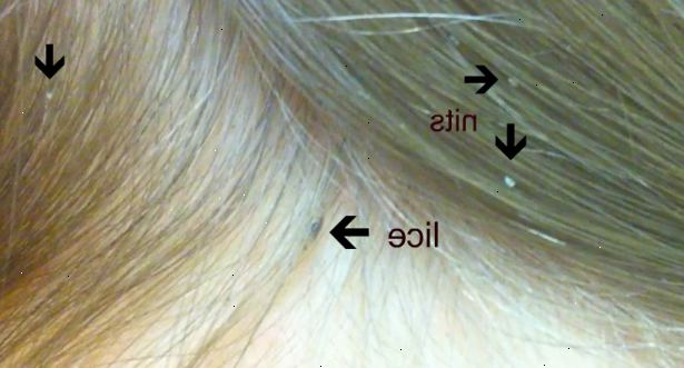 What does head lice look like in dark hair 10