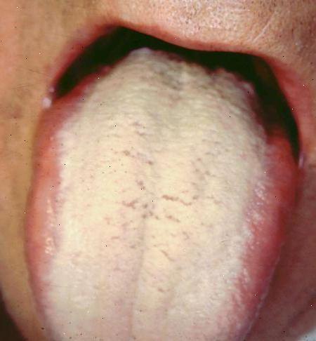 sprickor i tungan tips