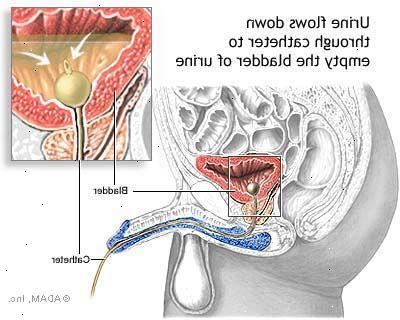 få bort urinvägsinfektion