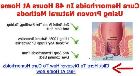 läka hemorrojder naturligt