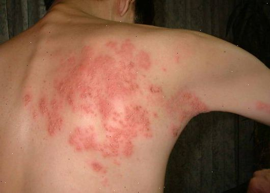 hiv symptom män