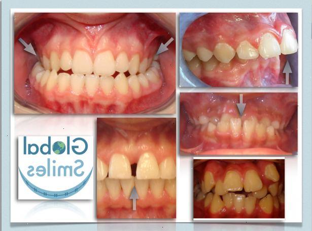 hur länge måste man ha tandställning
