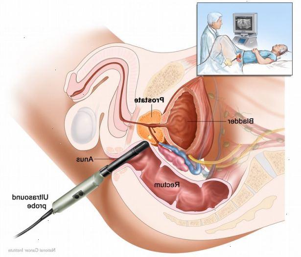 bra för prostatan